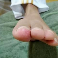 矯正前の爪