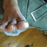 矯正後の右足親指の爪
