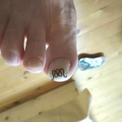 矯正後の右足親指