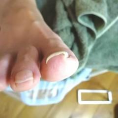 矯正前の右足親指