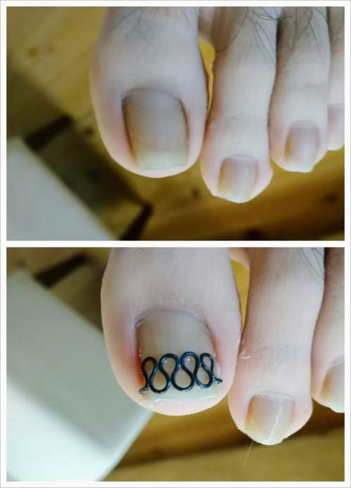 左足親指の爪の矯正前・矯正後