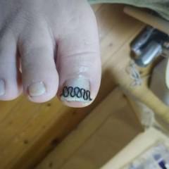 矯正後の右足親指正面
