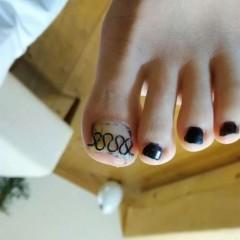 矯正後の左足親指