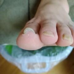 矯正前の左足親指