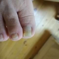 矯正前の右足親指正面