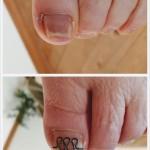 左足親指のビフォーアフター
