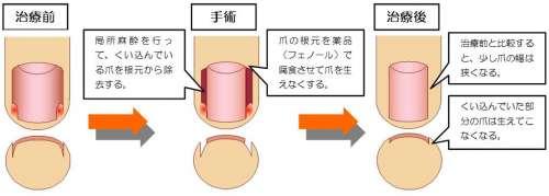 フェノール法