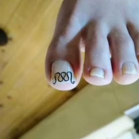 矯正後の左足親指の爪正面