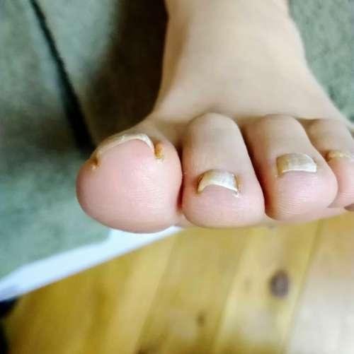 矯正前の左足親指の爪