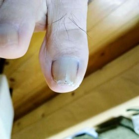 矯正前の右足親指の爪